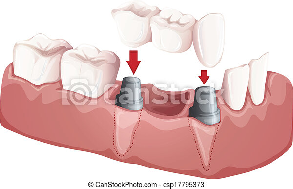 ponte, dentale - csp17795373